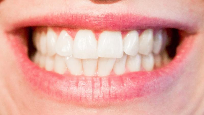 Ein Frau, die beim Lächeln ihre Zähne zeigt.