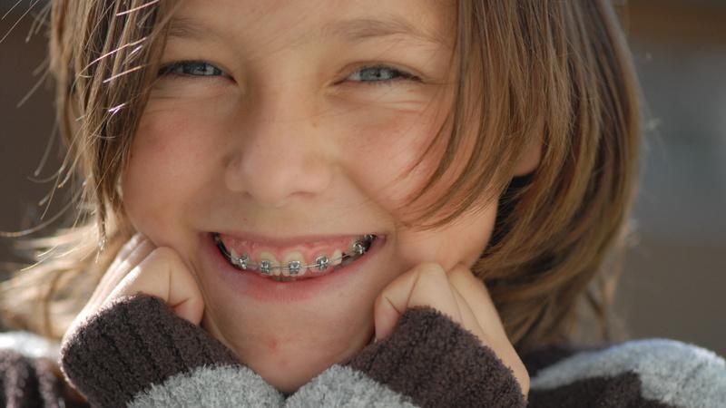Mundpflege, Zahnpflege, Zahnspange: Mädchen mit Zahnspange, sie lächelt.