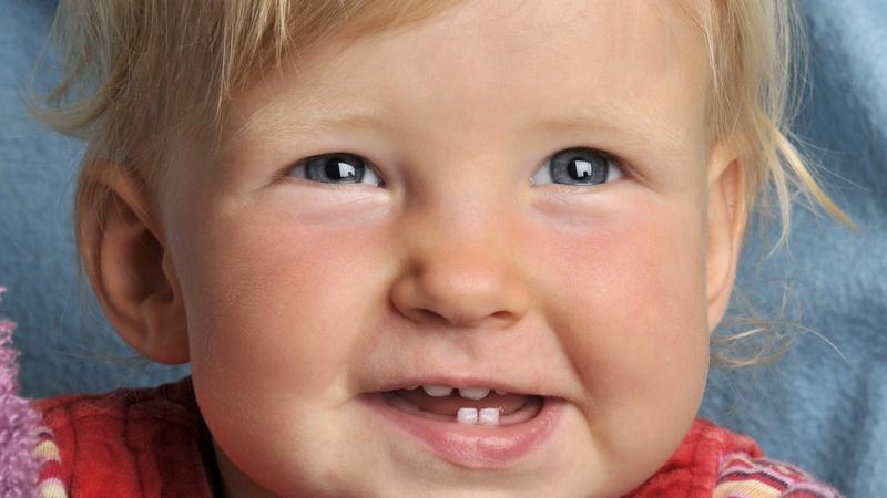 Baby, Babyjahre, Säugling, Zähne, Milchzähne: Kleinkind lächelt, man sieht ein paar Zähne