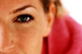 Couperose tritt häufig bei Frauen mit Sommersprossen auf.